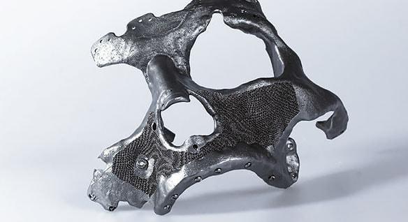 CEIT-KE maxillofacial implant