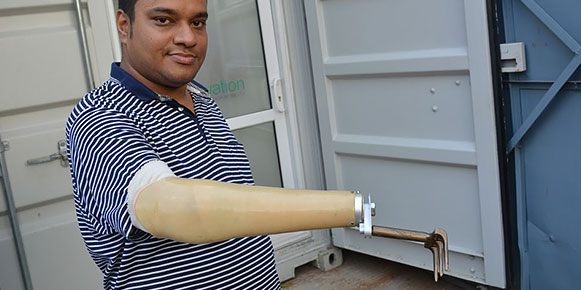 A man proudly displayed his prosthetic arm